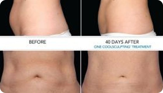 CoolSculpting is an innovative procedure which reduces localised areas of fat by freezing fat cells and then allowing the body to naturally dispose of these cold-damaged cells. While CoolSculpting is a very effective means of fat reduction, it will not really provide much in the way of weight loss.
