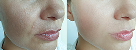 If you are looking for 'microneedling near me', our expert esthetic specialists can help you with your concerns. Learn more about microneedling therapy and whether it is right for you.