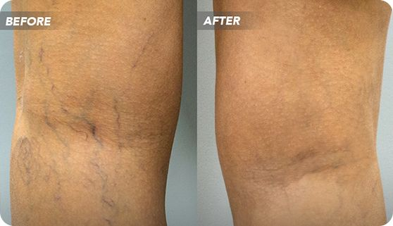 Sclerotherapy is a popular treatment choice for spider and varicose veins.