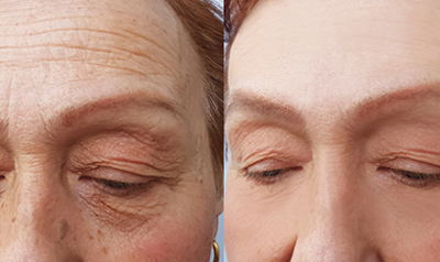 Botox injections are FDA-approved for the treatment of forehead lines. Typically, around 20 units of Botox are injected into the forehead to smooth out fine lines and wrinkles. Botox can be very effective at treating forehead lines because these lines tend to occur due to facial expressions.