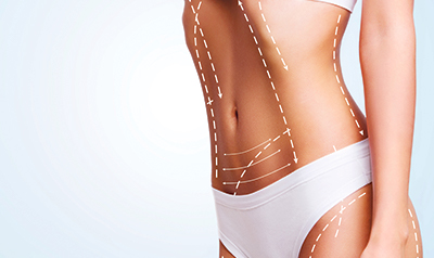 Some common side effects of CoolSculpting