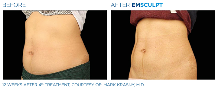 """If you are seeking Emsculpt treatment, you are probably keen to find out the answer to the question """"does Emsculpt hurt?"""" In this article, medical experts give you more information about this innovative treatment"""