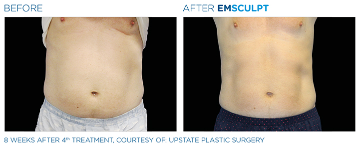 Emsculpt is a new, non-invasive body sculpting procedure which can simultaneously build muscle and burn fat. Find out how to find the best doctor for Emsculpt treatment at a top Boston Medical Spa