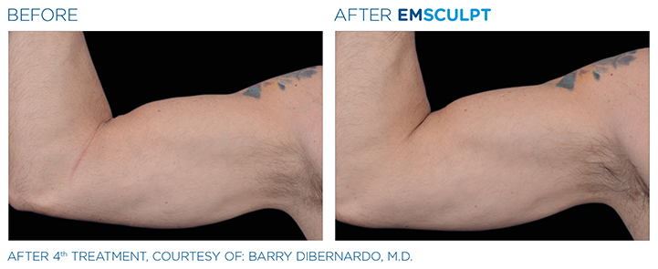 Emsculpt is a revolutionary, non-invasive treatment that can help you to build muscle and lose unwanted fat. Here, experts from a top Boston medical spa tell you all you need to know about Emsculpt in Natick, MA